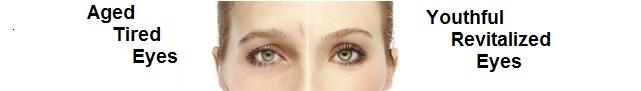 Fine Lines, Wrinkles Try Green Apple eye Serum By Amaranthine skin Care