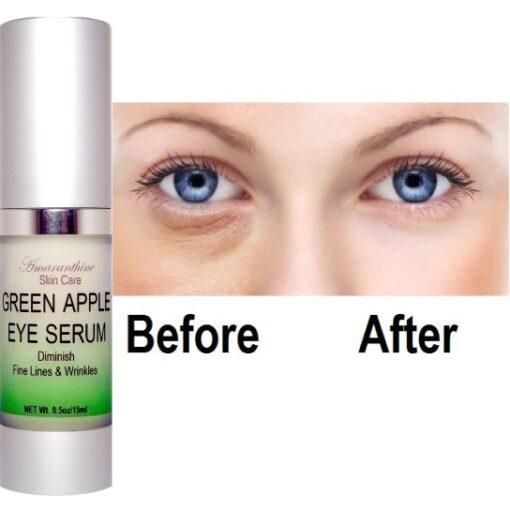 Green Apple Eye Serum before after
